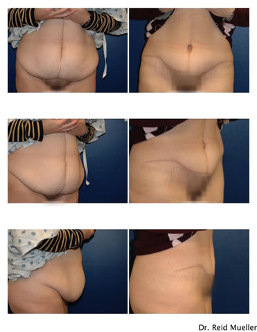 This woman had some scar from previous hysterectomy that were incorporated